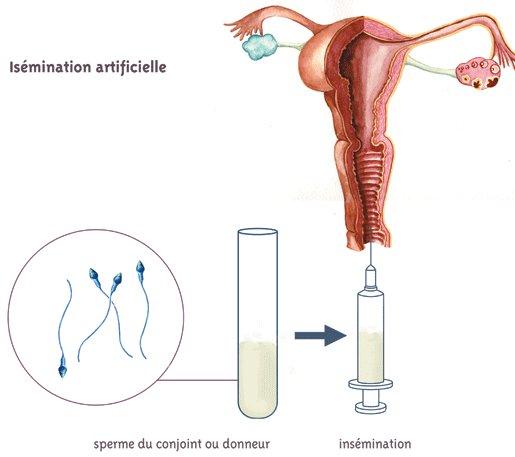 Célibataire insémination artificielle en belgique